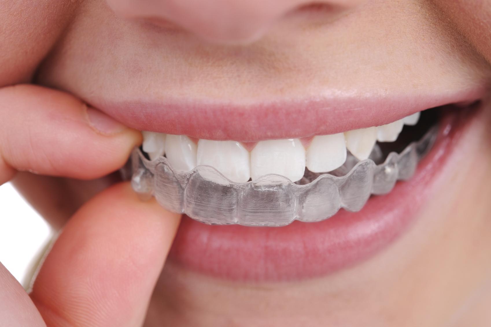e0939144c315 Капы для выравнивания зубов INVISALIGN во доступным ценам ...